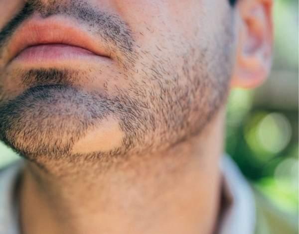 alopecia areata en barba
